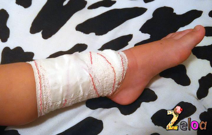 heridas-sangran-ninos-2eloa